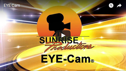 EYE-Cam Video